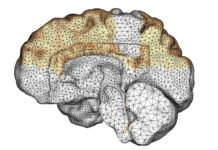 A Stanford-led team has created a new computer model that shows how amyloid beta proteins spread though the brain in dementia cases. (Image credit: Courtesy Living Matter Lab, Stanford University)