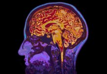 High iron levels associated with increased risk of certain types of stroke