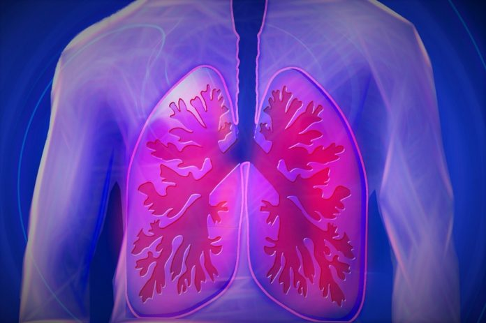 Drugs' side effects in lungs 'more widespread than thought'