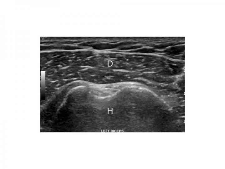 Images of the shoulder showing reversal of the rotator cuff to deltoid gradient. Image A displays the normal gradient of the deltoid muscle to the supraspinatus tendon. Image B shows reversal of the normal gradient in a type 2 diabetic patient. D: Deltoid, S: Supraspinatus, H: Humerus  CREDIT Radiological Society of North America
