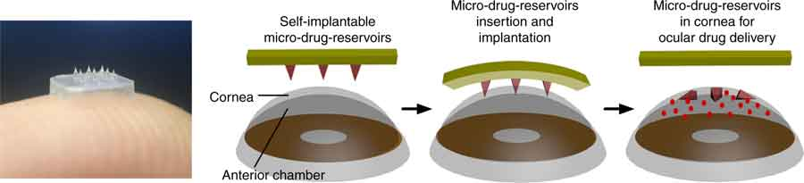 Illustration of eye-contact patch for ocular drug delivery. The eye patch is equipped with an array of self-implantable micro-drug-reservoirs