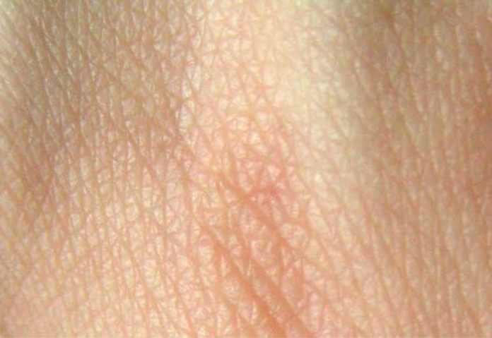 Researchers regrow hair on wounded skin
