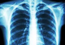 New genetic insight could help treat rare debilitating heart and lung condition