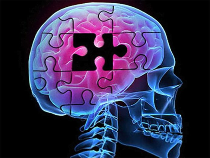 Antipalaptic drugs are associated with accumulation of hospital days in people with Alzheimer's disease