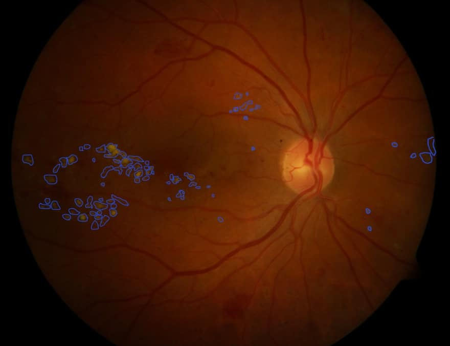 A fundus image of a retina, with damaged areas highlighted by the image-processing algorithm.