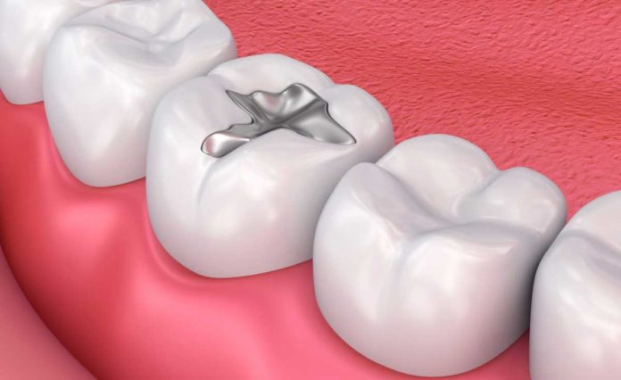 New bioactive dental filling material promises to be teeth-friendly