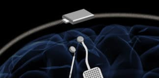 In a proposed device, two of the new chips would be embedded in a chassis located outside the head. Each chip could monitor electrical activity from 64 electrodes located into the brain while simultaneously delivering electrical stimulation to prevent unwanted seizures or tremors. (credit: Rikky Muller, UC Berkeley)