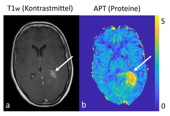 On the left the conventional morphological contrast enhanced imaging of a brain tumor with a clinical 3 Tesla MRT, on the right the protein measurement with the 7 Tesla MRT. © D. Paech/DKFZ