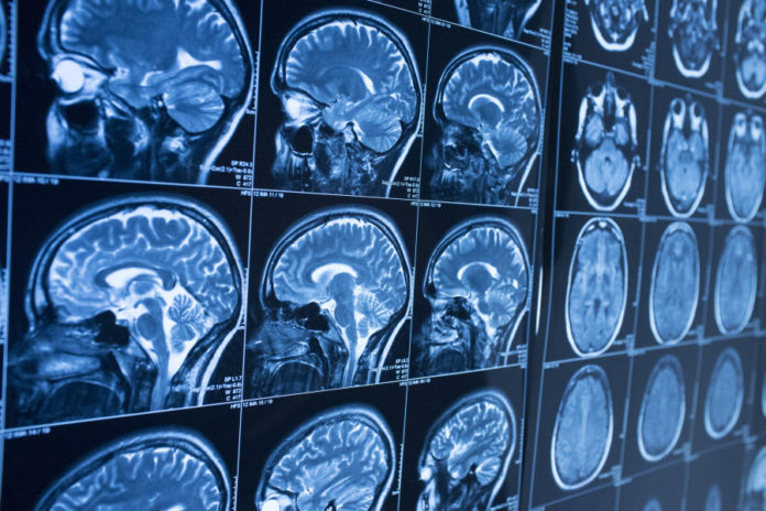 Researchers from Brigham and Women's Hospital, King's College London, and other institutions have developed a technique for measuring brain activity that's 60 times faster than traditional fMRI.