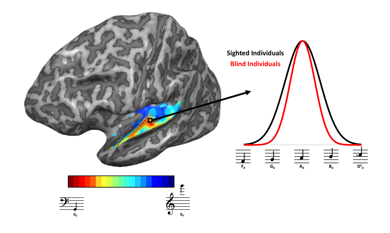 Left: Researchers began by measuring responses in the auditory cortex to find a map of how frequency responses were represented in the brain. The warm colors represent regions of the brain that showed the greatest response to low-pitched tones, while blue colors represent regions that responded more to high-pitched tones. Right: When researchers examined the range of frequencies each vertex of the brain was selective to, they found tuning tended to be narrower for blind individuals, which may underlie the enhanced ability of blind individuals to pick out and identify sounds in the environment.Kelly Chang/U. of Washington
