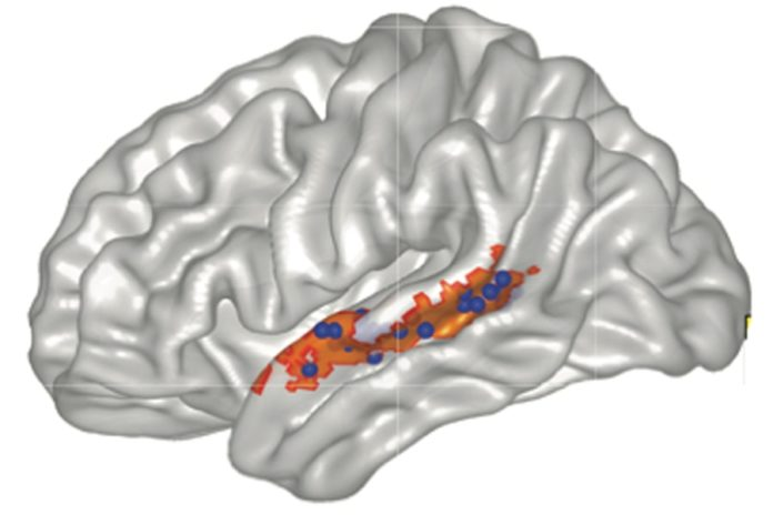 An illustration shows functional connectivity between the posterior striatum and speech-selective left superior temporal sulcus tissue. l-STS tissue was identified as exhibiting greater BOLD activation for hearing speech compared with nonspeech sounds (i.e., speech: English words and syllables vs. nonspeech: semantically matched environmental sounds and sound exemplars from the videogame) in a separate localizer task before videogame training. The group-based speech ></noscript> nonspeech contrast mask is shown in orange, and individually defined speech-selective ROIs are shown as blue spheres.