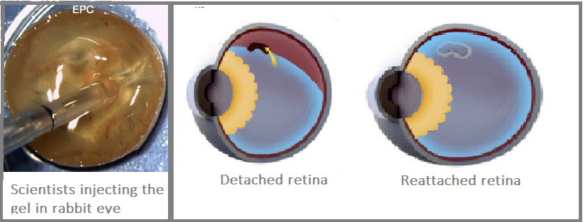 A new biomaterial to heal detached retina