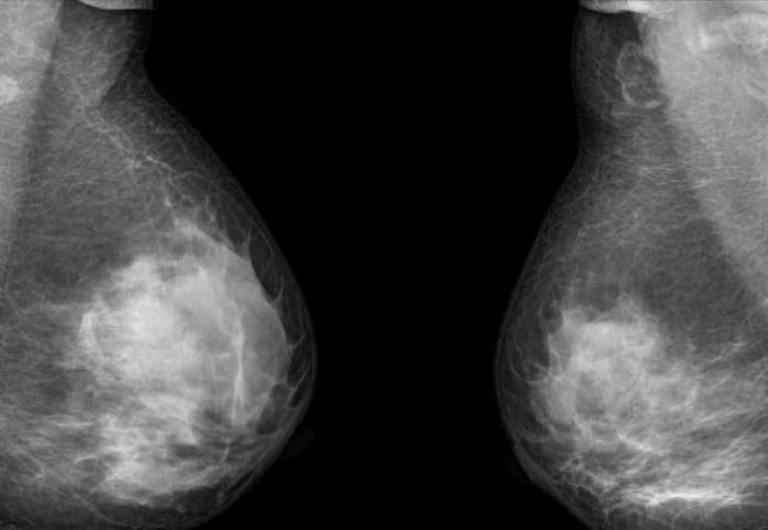With up to 30% of patients seeing their cancer return within five years, the new test could spot the warning signs earlier than imaging