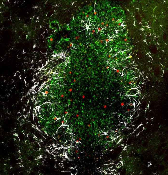 Tissue sample from a mouse brain showing a tumor generated from human glioblastoma cells. In green, tumor cells expressing EGFP, in red the proliferation marker Ki67 and in white the astrocyte marker GFAP. | © J. Alfonso/DKFZ