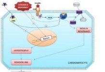 How Vitamin D deficiency can cause heart failure?