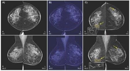 Image: Radiology