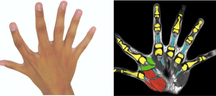 Like non-polydactyl fingers, the extra digits had their own dedicated tendons, muscles, and nerves, as well as extra corresponding brain regions in the motor cortex.