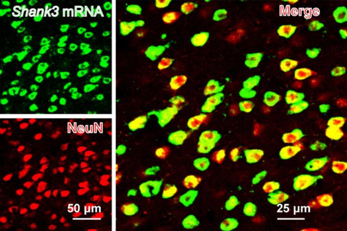 SHANK3 (green) is expressed along with a neural marker (NeuN) in the mouse anterior cingulate cortex. Image: Guoping Feng
