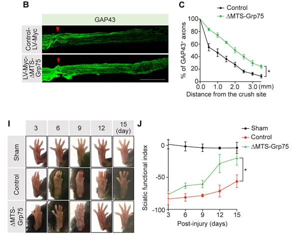 Grp75 overexpression restores sciatic nerve injury in mice by facilitating axon regeneration.