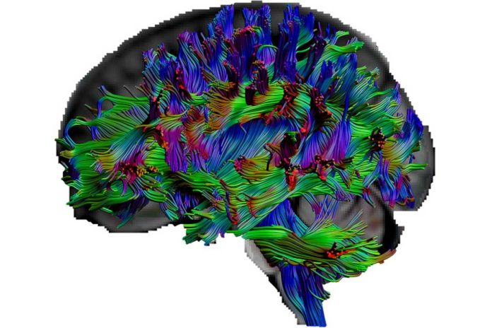 With the diffusion tensor imaging, the researchers can visualize the nerve fibers in the brain. © RUB, Erhan Genç