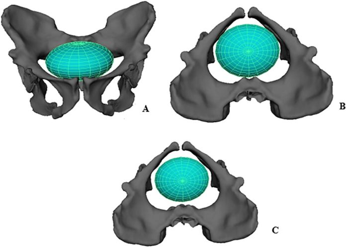 Ellipse representing a neonatal A. sediba head at the pelvic. A. inlet, frontal view B. inlet, superior view C. midplane, superior view. Reconstructed pelvis is shown with the MH1 ischium. Notice that the modeled A. sediba neonatal cranium can descend into the midplane without bony constraints, unlike the condition typically found in modern humans. Credit: PLOS ONE (2019). DOI: 10.1371/journal.pone.0221871
