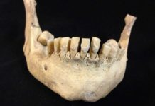Ancient human remains tested in the study from the collections of the Dorset County Museum.