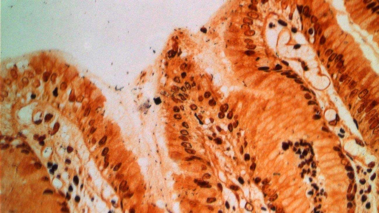 Stomach tissue infected with Helicobacter pylori (dark dots). These bacteria can cause stomach ulcers and cancer. Image: Markus Gerhard / TUM