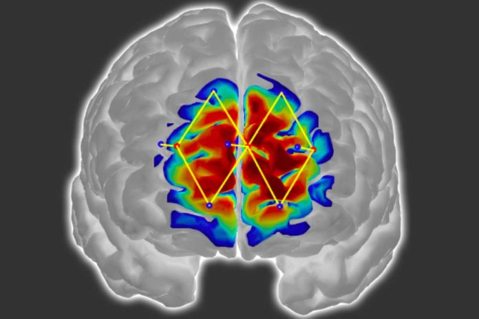 Researchers from MIT and elsewhere have developed a system that detects pain in patients by analyzing brain activity from a wearable neuroimaging device, which could help doctors diagnose and treat pain in unconscious and noncommunicative patients.