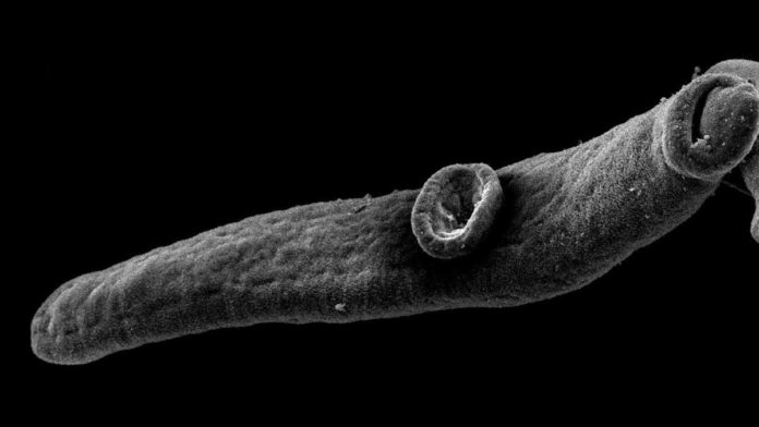A juvenile blood fluke. Schistosomiasis infection can lead to liver cirrhosis, among others. Image: Clarissa Prazeres da Costa / TUM