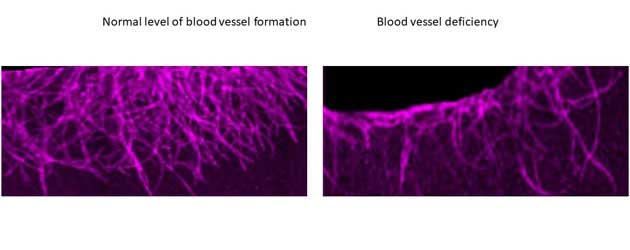 A mechanism for how new blood vessels are formed uncovered