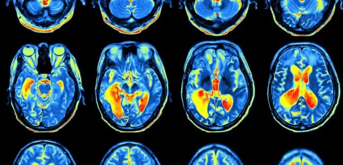 How our brains remember things depends upon how we learn them Image credit: Shutterstock