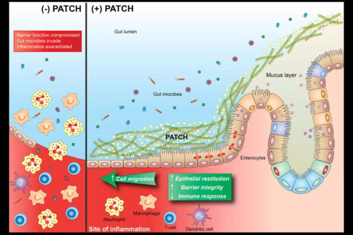 Inflammatory lesions destroy epithelial cells that function as a barrier between the inside of the gut (lumen) and the rest of the body (left). PATCH is a bioactive material synthesized by engineered probiotic bacteria that helps to maintain gut barrier function, thereby helping to keep bacteria and other particulates in the lumen and ameliorating the symptoms of inflammation (right). Wyss Institute at Harvard University