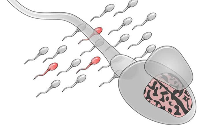 In this illustration of sperm mosaicism, mutated sperm are depicted in red. Credit: UC San Diego Health Sciences