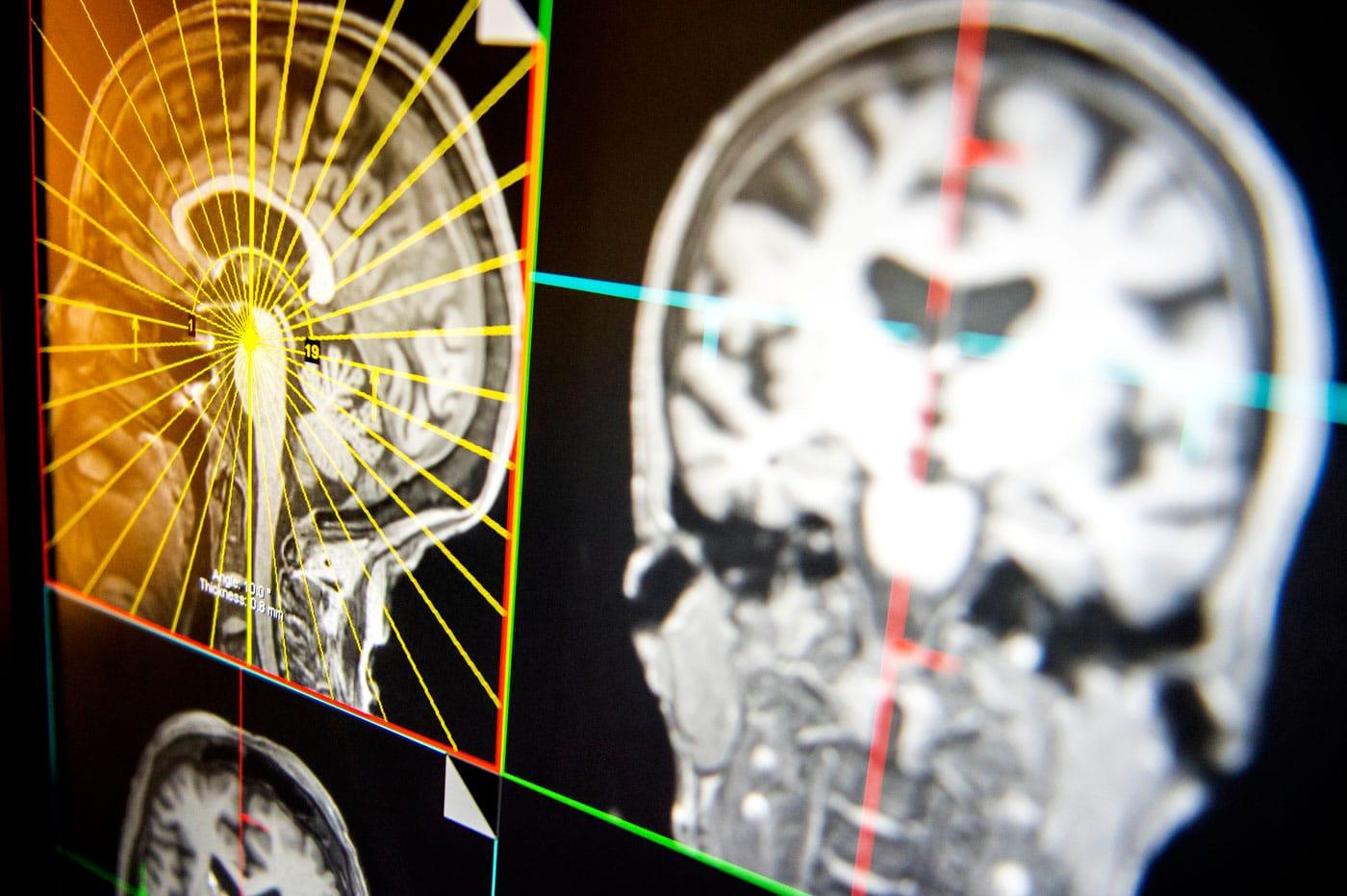 Brain scans can predict children's mental health problems ...