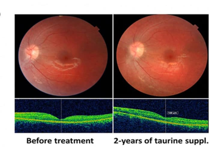 Photographs of the patient's left fundus at baseline and after 24 months of taurine supplementation, showing anatomical stability with photoreceptor preservation. © UNIGE