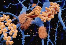 The amyloid-beta peptide accumulates to amyloid fibrils that build up dense amyloid plaques. Credit: selvanegra (iStock photos)