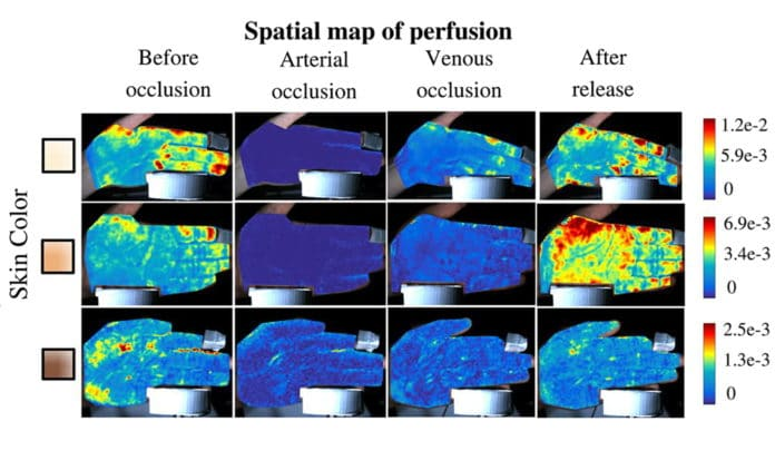"""PulseCam blood perfusion maps show blood flow to the hand during """"post-occlusive reactive hyperemia"""" (PORH) tests. PORH is a standard test that uses a pressure cuff on the upper arm to first restrict blood flow and then release blood back to the hand. The tests showed that Rice University's PulseCam technology can distinguish between arterial and venous occlusion. (Image courtesy of A. Sabharwal/Rice University)"""