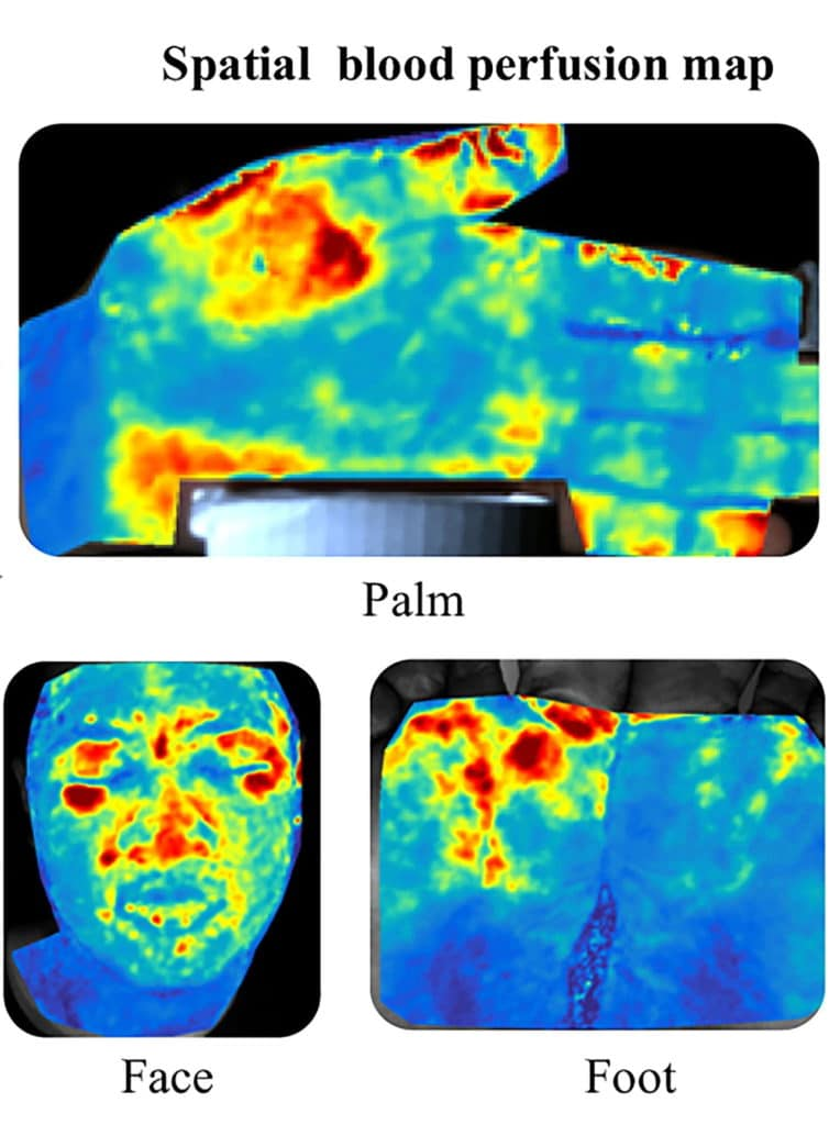 Rice University engineers have developed a patented process to peek below the skin and map blood flow in high resolution. Red indicates greatest blood flow and blue the least. (Image courtesy of A. Sabharwal/Rice University)
