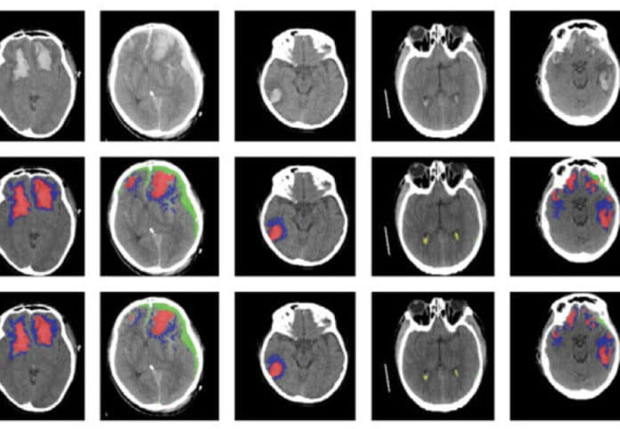 New AI algorithm can detect various brain injuries