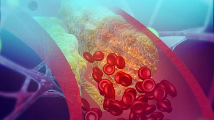 A whole new way of detecting blood clots