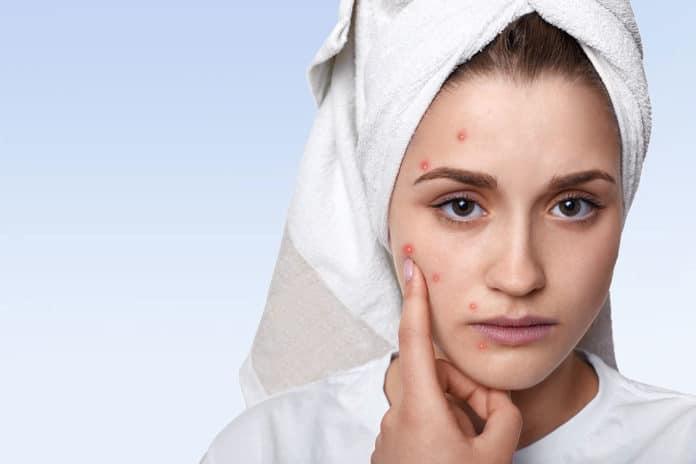 Anatomy of an acne treatment