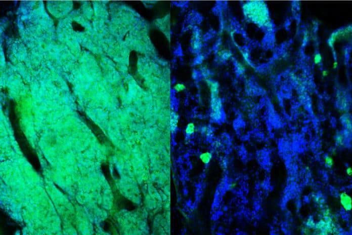The bone marrow containing acute myeloid leukemia cells