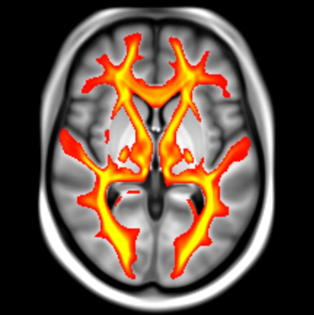 MRI brain scan from the UK Biobank showing white matter pathways, the connections that convey information between brain regions