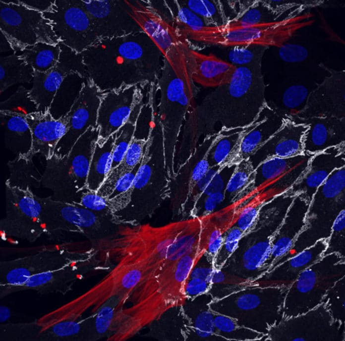 Skin fibroblasts were successfully reprogrammed into the smooth muscle cells (red) and endothelial cells (white) that surround blood vessels