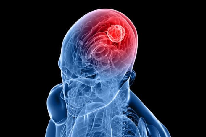 An enhanced form of liquid biopsy developed for brain tumors