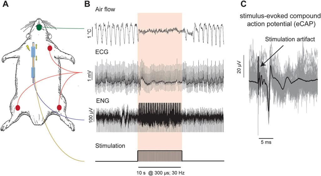 Quantitative estimation of nerve fiber engagement by vagus nerve stimulation using physiological markers
