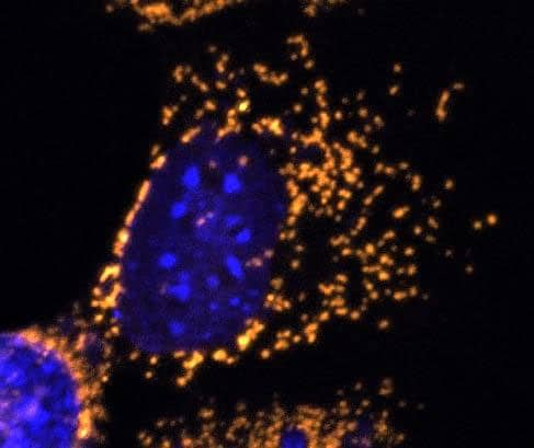Fragmented mitochondria