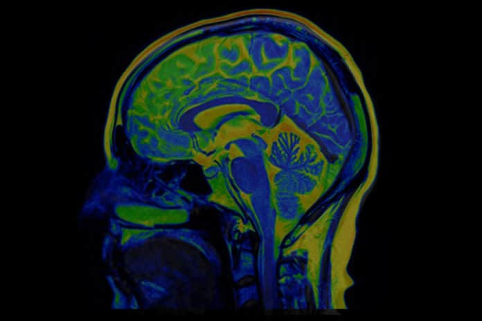 A study reported details of neurological injury in COVID-19 patients