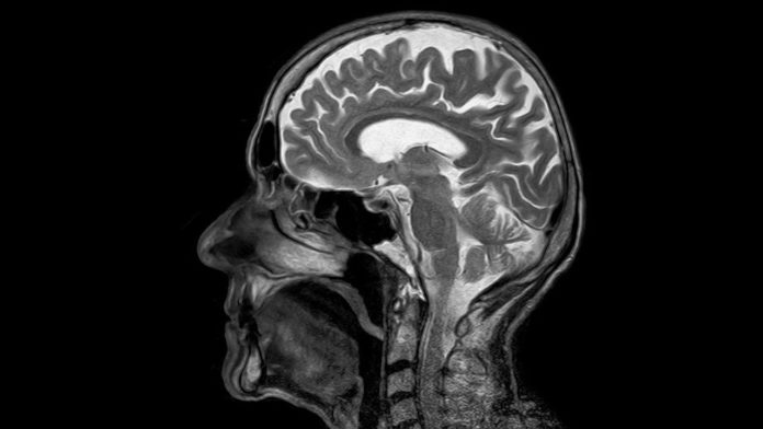 Brain's other plumbing system plays role in both good health and response to injury