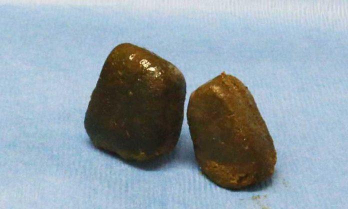 cubed wombat poo